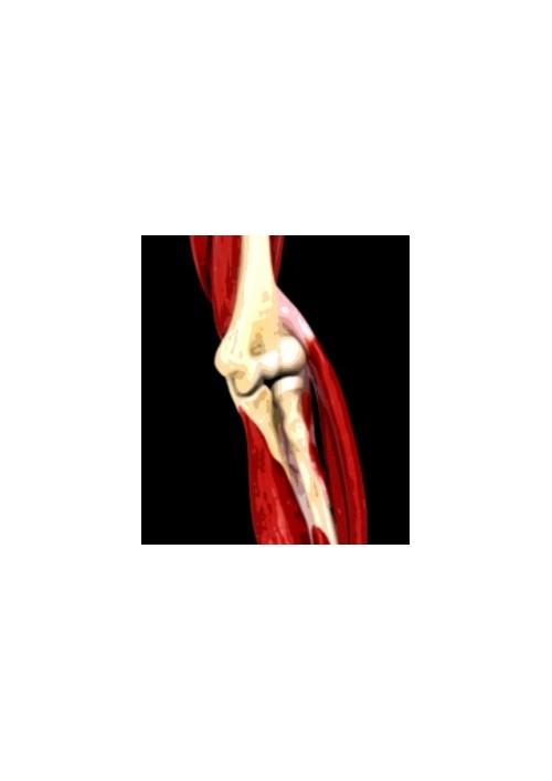 Trattamento delle fratture-lussazioni del gomito con instabilità rotatoria postero-laterale e postero-mediale